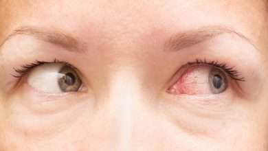 Eye allergies What are the causes of eye allergies and the best way to remove it 1