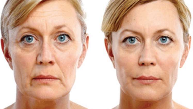 Cheek and Buccal Hollow Augmentation Juvaderm before and after