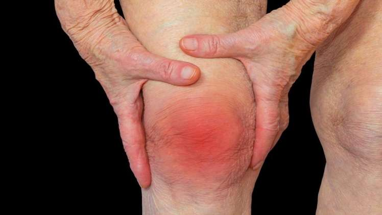 8 Early Symptoms and Signs of Rheumatoid Arthritis RA Dr. Ratnav Ratan