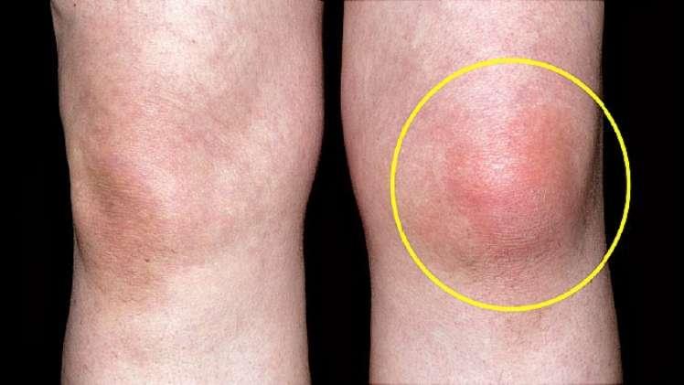 8 Early Symptoms and Signs of Rheumatoid Arthritis RA Dr. Ratnav Ratandf