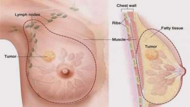Mastectomy in the United Arab Emirates