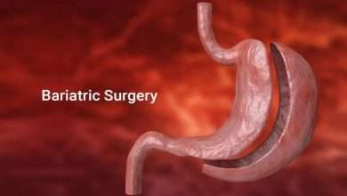 Myths and Facts about Bariatric Surgery