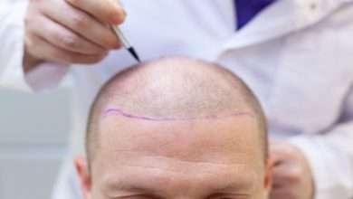 preparation hair transplant surgery 262891 2