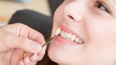 All About Dental Veneers