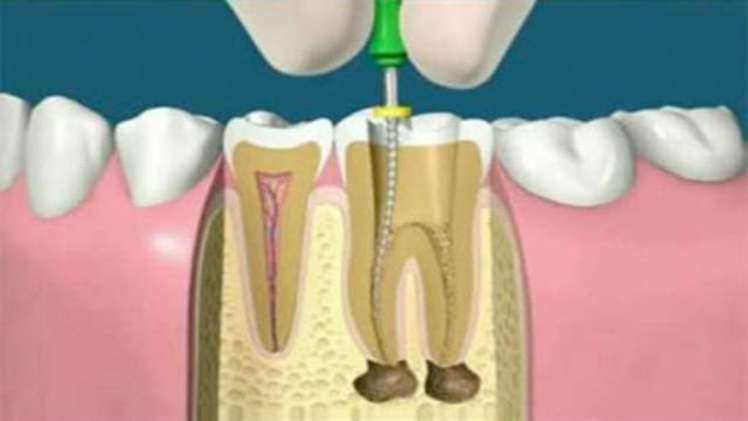What is root canal treatment How expensive is it